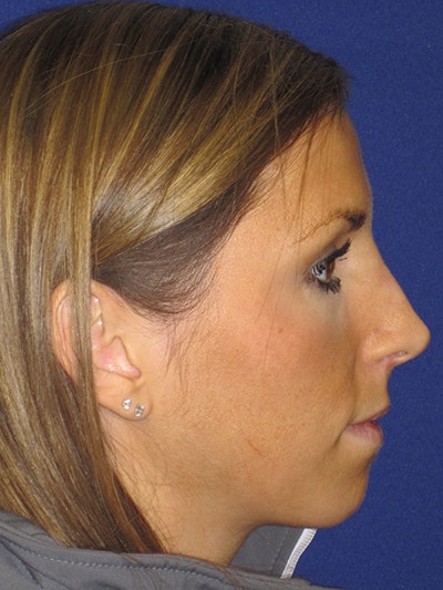 "Non-Surgical ""Liquid"" Rhinoplasty Gallery - Patient 4890748 - Image 2"