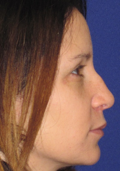 "Non-Surgical ""Liquid"" Rhinoplasty Gallery - Patient 4890751 - Image 1"