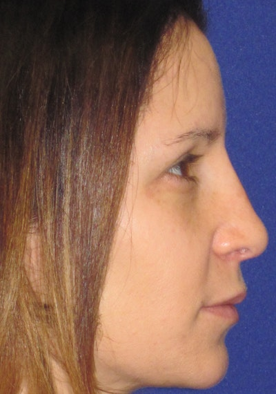 "Non-Surgical ""Liquid"" Rhinoplasty Gallery - Patient 4890751 - Image 2"