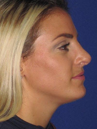 Rhinoplasty Gallery - Patient 4890752 - Image 6