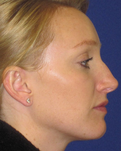 "Non-Surgical ""Liquid"" Rhinoplasty Gallery - Patient 4890759 - Image 1"