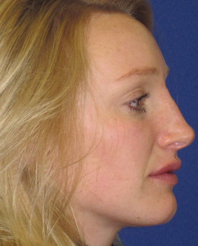 "Non-Surgical ""Liquid"" Rhinoplasty Gallery - Patient 4890759 - Image 2"