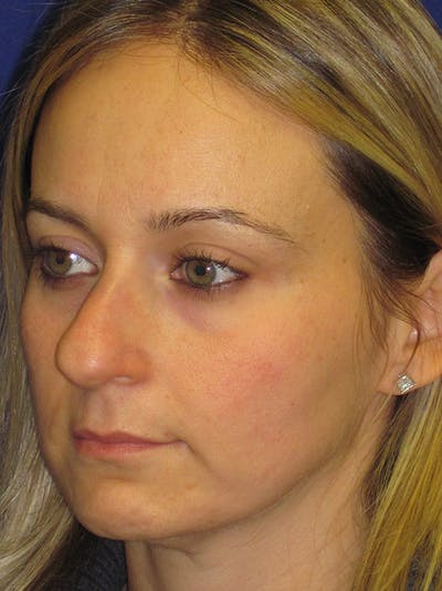 Rhinoplasty Gallery - Patient 4890782 - Image 1