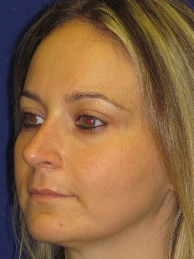 Rhinoplasty Gallery - Patient 4890782 - Image 2