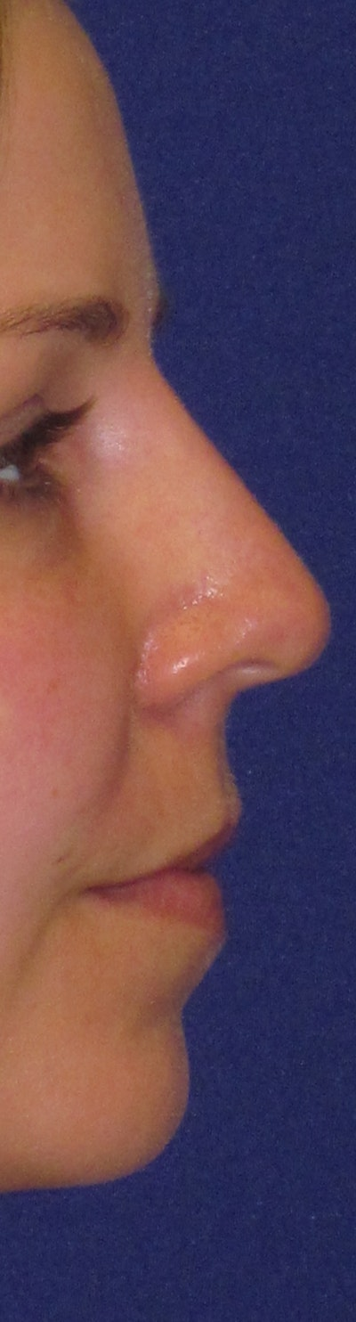 "Non-Surgical ""Liquid"" Rhinoplasty Gallery - Patient 4890775 - Image 2"