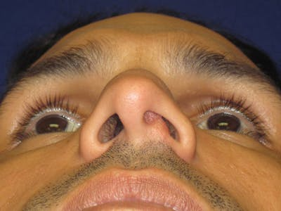 Septoplasty Gallery - Patient 4890776 - Image 1