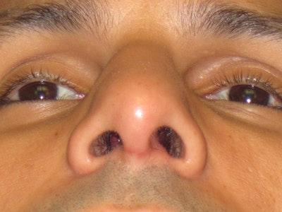 Septoplasty Gallery - Patient 4890776 - Image 2
