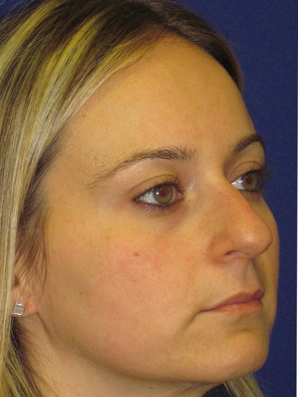 Rhinoplasty Gallery - Patient 4890782 - Image 3