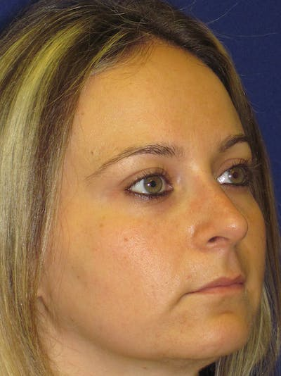 Rhinoplasty Gallery - Patient 4890782 - Image 4