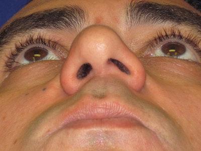 Septoplasty Gallery - Patient 4890779 - Image 1