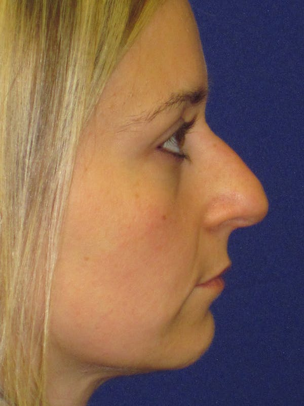 Rhinoplasty Gallery - Patient 4890782 - Image 5