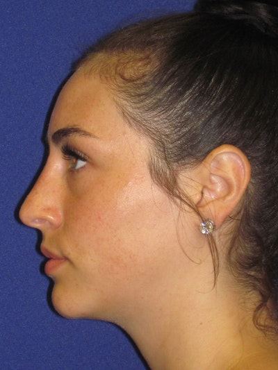 "Non-Surgical ""Liquid"" Rhinoplasty Gallery - Patient 4890780 - Image 2"