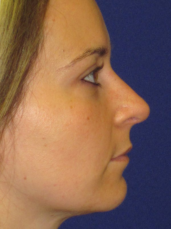 Rhinoplasty Gallery - Patient 4890782 - Image 6