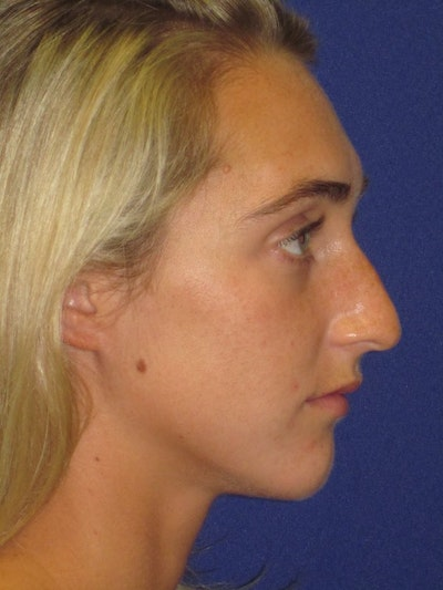 "Non-Surgical ""Liquid"" Rhinoplasty Gallery - Patient 4890786 - Image 1"