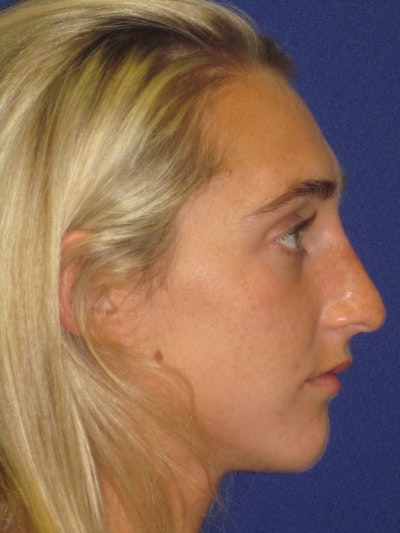 "Non-Surgical ""Liquid"" Rhinoplasty Gallery - Patient 4890786 - Image 2"