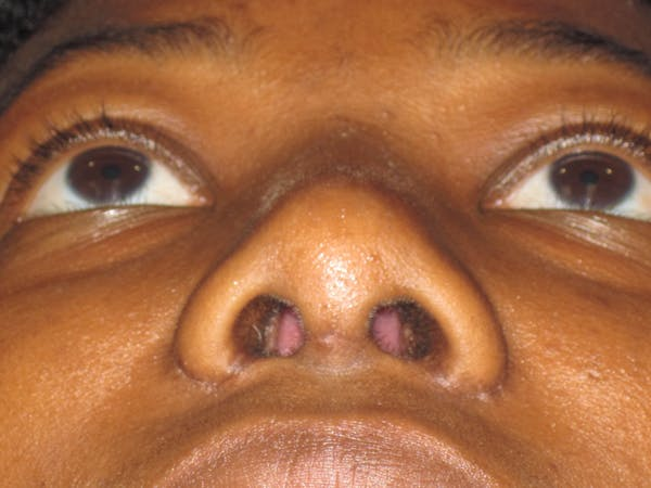 Rhinoplasty Gallery - Patient 4890805 - Image 6