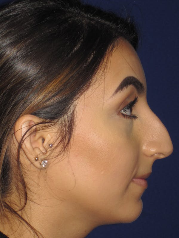 Before & after Rhinoplasty in Philadelphia 3