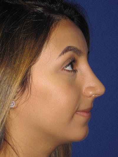 Rhinoplasty Gallery - Patient 4890855 - Image 2