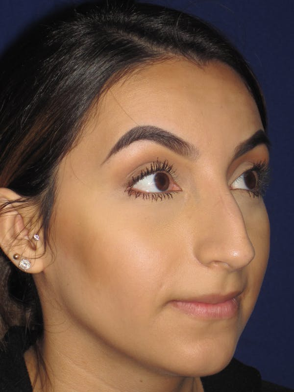 Rhinoplasty Gallery - Patient 4890855 - Image 3