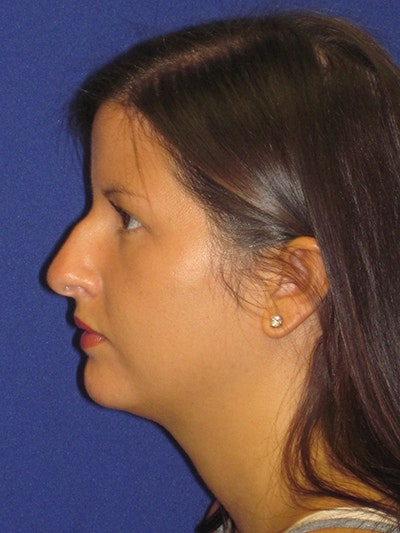 Rhinoplasty Gallery - Patient 4890859 - Image 1