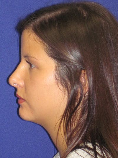 Rhinoplasty Gallery - Patient 4890859 - Image 2