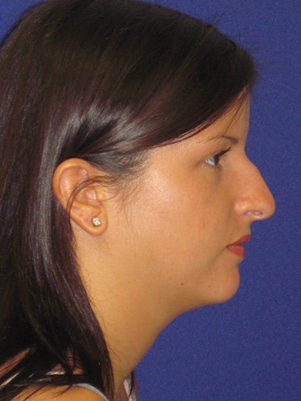 Rhinoplasty Gallery - Patient 4890859 - Image 3
