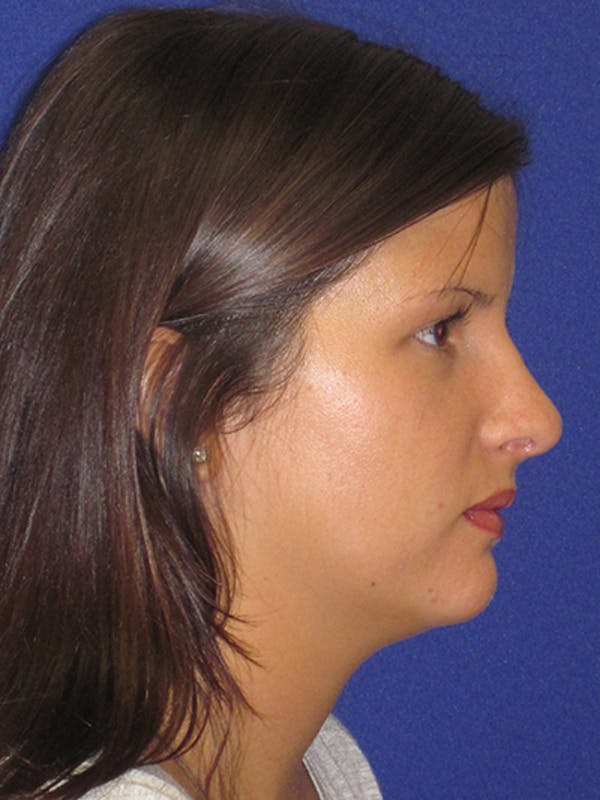 Rhinoplasty Gallery - Patient 4890859 - Image 4