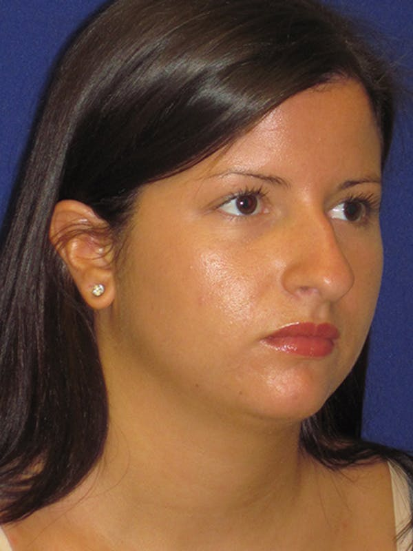 Rhinoplasty Gallery - Patient 4890859 - Image 5