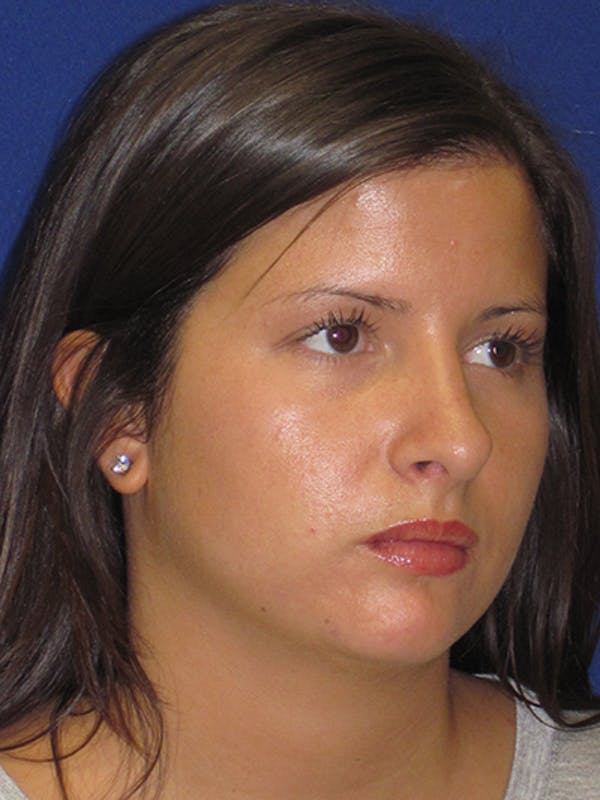 Rhinoplasty Gallery - Patient 4890859 - Image 6