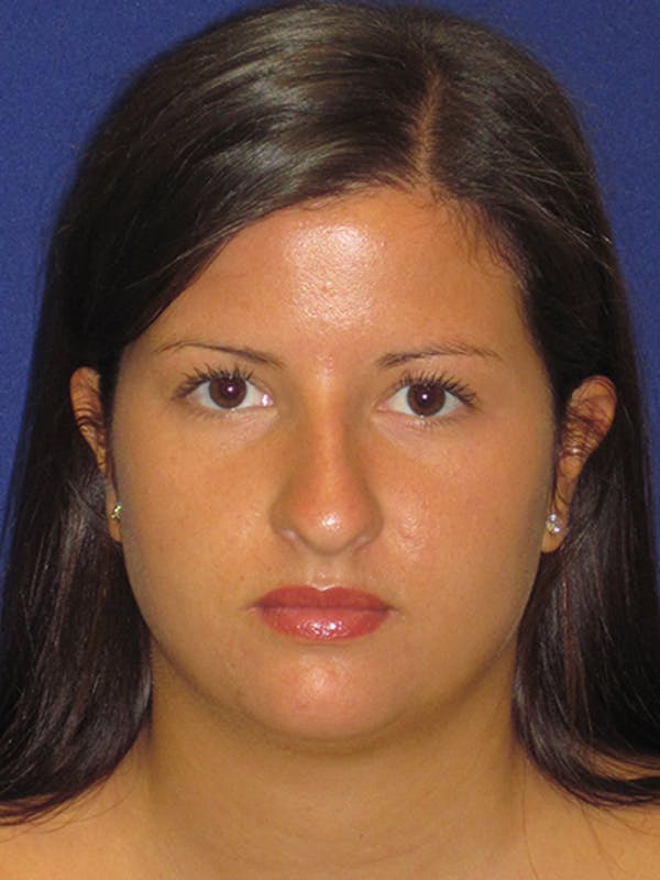 Rhinoplasty Gallery - Patient 4890859 - Image 7
