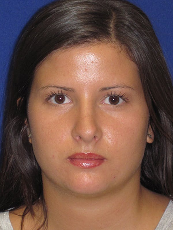 Rhinoplasty Gallery - Patient 4890859 - Image 8