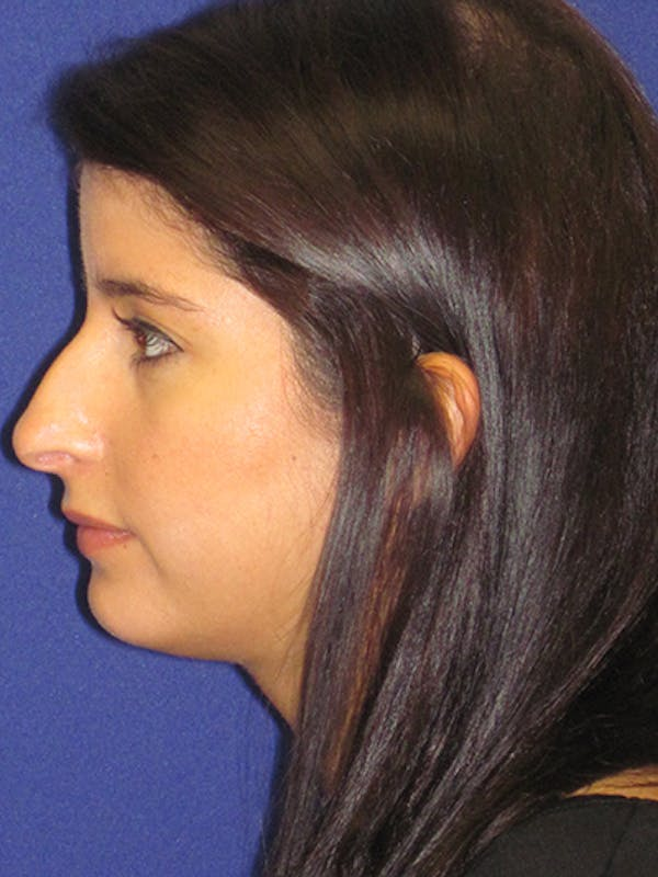 Rhinoplasty Gallery - Patient 4890860 - Image 1
