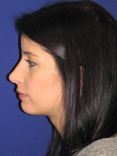 Rhinoplasty Gallery - Patient 4890860 - Image 2