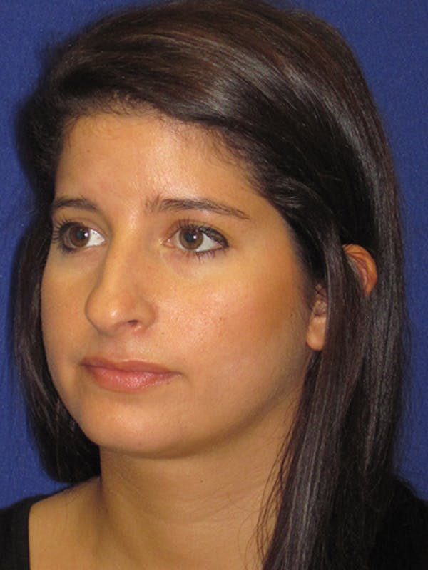 Rhinoplasty Gallery - Patient 4890860 - Image 3