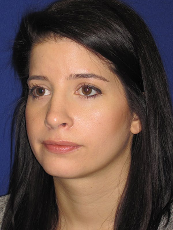Rhinoplasty Gallery - Patient 4890860 - Image 4
