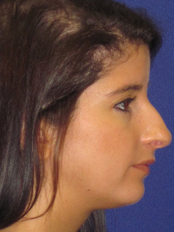 Rhinoplasty Gallery - Patient 4890860 - Image 5