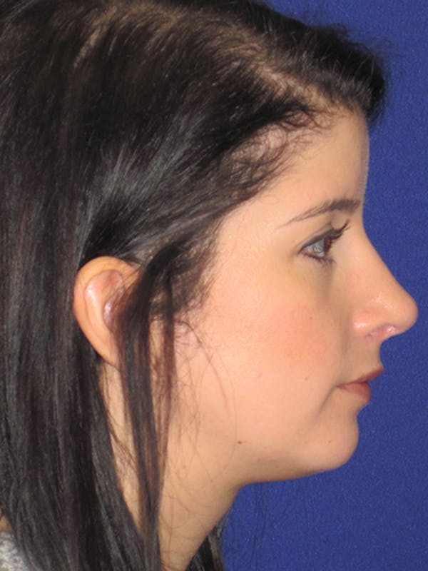 Rhinoplasty Gallery - Patient 4890860 - Image 6