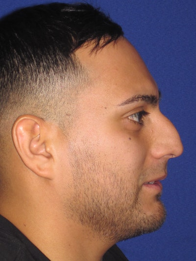 Rhinoplasty Gallery - Patient 4890864 - Image 1
