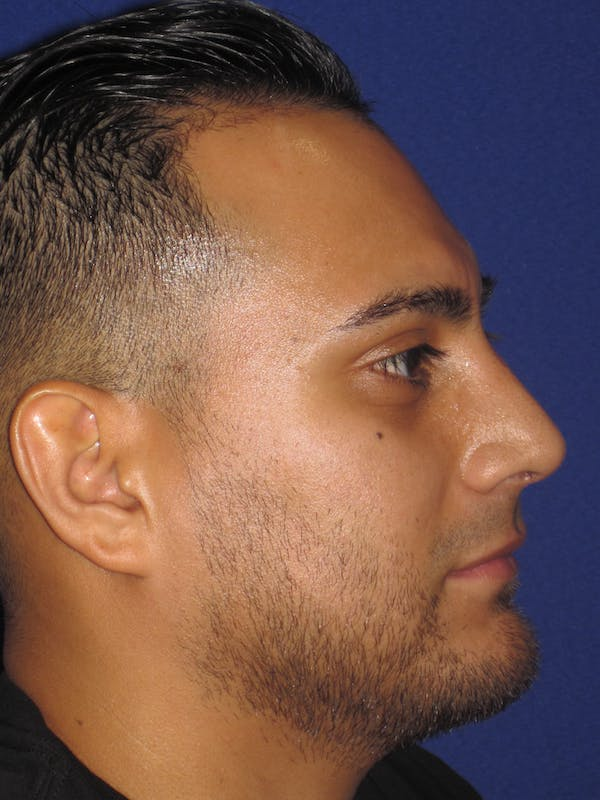 Before and After Dorsal Hump Rhinoplasty in Philadelphia