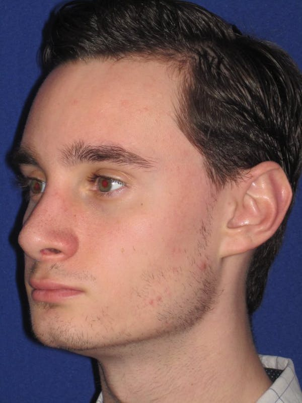 Before & after Rhinoplasty in Philadelphia 4