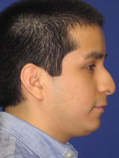 Rhinoplasty Gallery - Patient 4890904 - Image 1