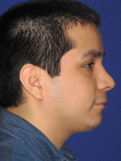 Rhinoplasty Gallery - Patient 4890904 - Image 2