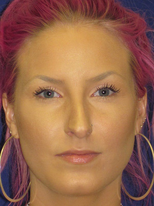 Rhinoplasty Gallery - Patient 4890906 - Image 1