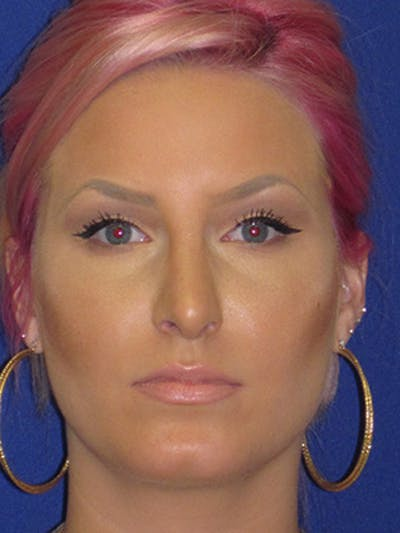 Rhinoplasty Gallery - Patient 4890906 - Image 2