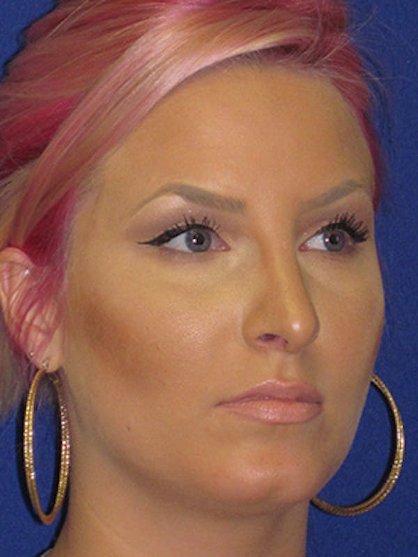 Rhinoplasty Gallery - Patient 4890906 - Image 4