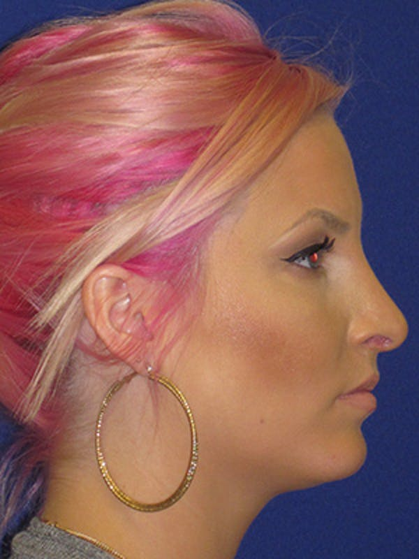 Rhinoplasty Gallery - Patient 4890906 - Image 6