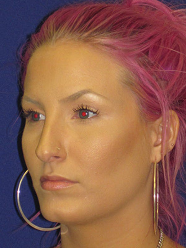 Rhinoplasty Gallery - Patient 4890906 - Image 7