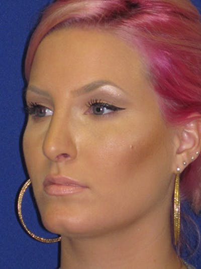 Rhinoplasty Gallery - Patient 4890906 - Image 8
