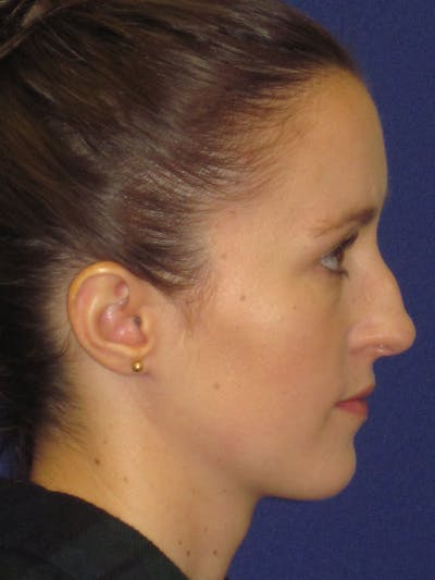 Rhinoplasty Gallery - Patient 4890907 - Image 1