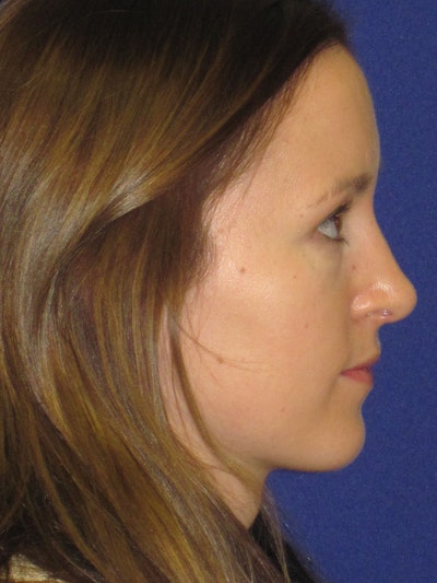 Rhinoplasty Gallery - Patient 4890907 - Image 2
